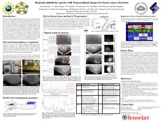 Regional admittivity spectra with Tomosynthesis images  f or  breast cancer  detection