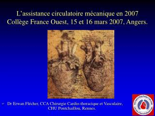 L'assistance circulatoire mécanique en 2007 Collège France Ouest, 15 et 16 mars 2007, Angers.