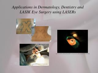 Applications in Dermatology, Dentistry and LASIK Eye Surgery using  LASERs