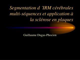 Segmentation d��IRM c�r�brales multi-s�quences et application � la scl�rose en plaques