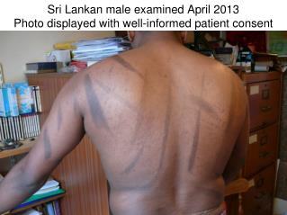 Sri Lankan male examined April 2013 Photo displayed with well-informed patient consent