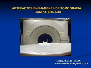 ARTEFACTOS EN IM�GENES DE TOMOGRAFIA                            COMPUTARIZADA