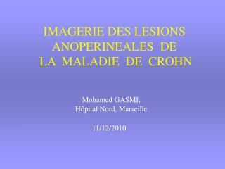 IMAGERIE DES LESIONS ANOPERINEALES  DE   LA  MALADIE  DE  CROHN