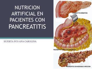 NUTRICION ARTIFICIAL EN PACIENTES CON  PANCREATITIS