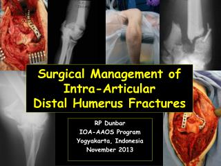 Surgical Management of Intra-Articular  Distal Humerus Fractures