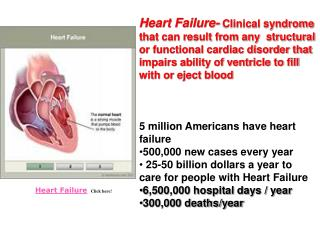 Heart Failure    Click here!
