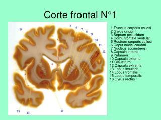 Corte frontal N°1