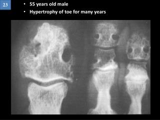 55 years old male Hypertrophy of toe for many years