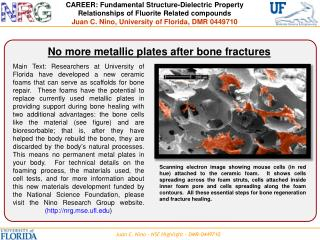 No more metallic plates after bone fractures