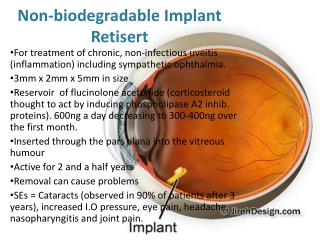 Non-biodegradable Implant Retisert