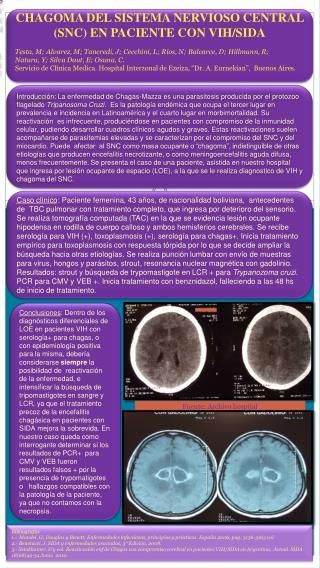 CHAGOMA DEL SISTEMA NERVIOSO CENTRAL (SNC) EN PACIENTE CON VIH/SIDA