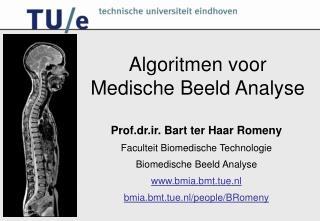 Algoritmen voor  Medische Beeld Analyse