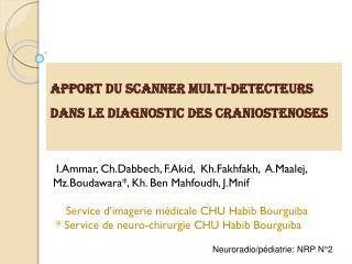 APPORT DU SCANNER multi- detecteurs  DANS LE DIAGNOSTIC DES CRANIOSTENOSES