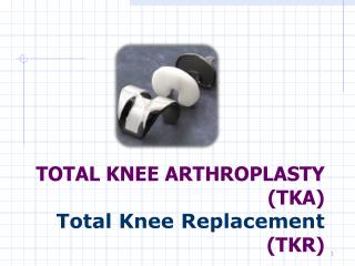 TOTAL KNEE ARTHROPLASTY (TKA)  Total Knee Replacement (TKR)
