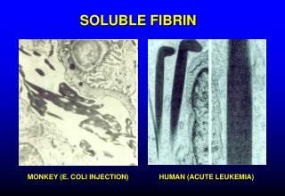 SOLUBLE FIBRIN