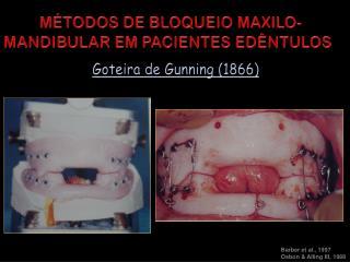 MÉTODOS DE BLOQUEIO MAXILO-MANDIBULAR EM PACIENTES EDÊNTULOS