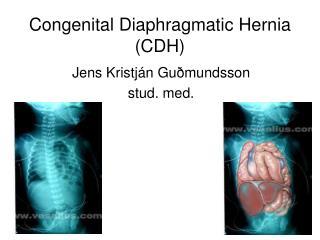 Congenital Diaphragmatic Hernia (CDH)