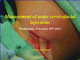 Management of acute cervicofacial infections