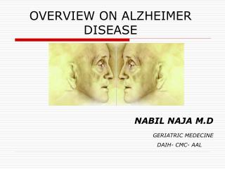 OVERVIEW ON ALZHEIMER DISEASE