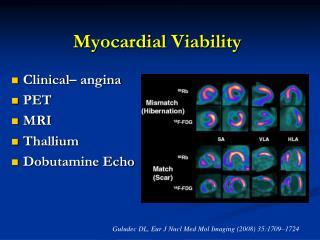 Myocardial Viability