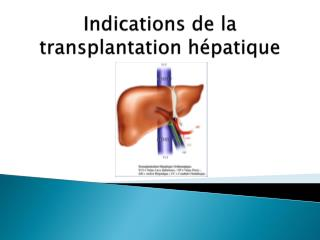 Indications de la transplantation hépatique