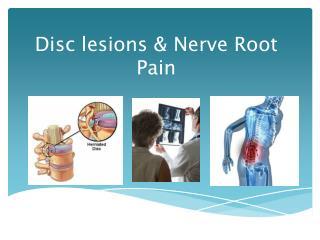 Disc lesions & Nerve Root Pain