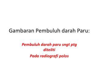 Gambaran Pembuluh darah Paru: