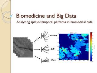 Biomedicine and Big Data