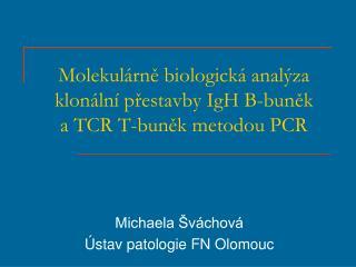 Molekulárně biologická analýza klonální přestavby IgH B-buněk         a TCR T-buněk metodou PCR