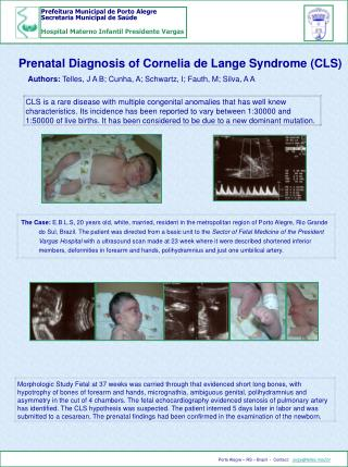 Prenatal Diagnosis of Cornelia de Lange Syndrome CLS