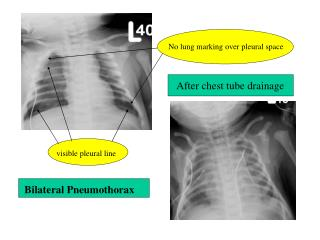 Bilateral Pneumothorax