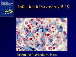 Infection à Parvovirus B 19
