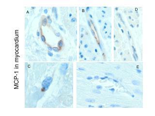 MCP-1 in myocardium