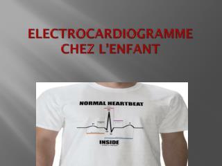 ELECTROCARDIOGRAMME CHEZ L'ENFANT