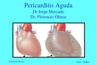 Pericarditis Aguda Dr J o rge Mercado Dr. Florencio Olmos