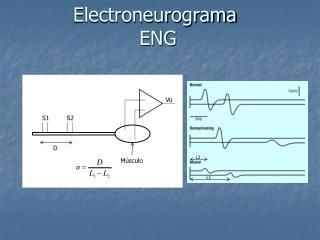 Electroneurograma  ENG