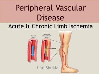 Peripheral Vascular  Disease  Acute & Chronic Limb Ischemia