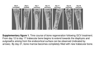 Supplementary figure 1.  Time course of bone regeneration following GCV treatment.