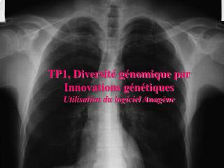 TP1, Diversité génomique par Innovations génétiques Utilisation du logiciel Anagène