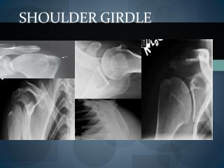 Shoulder girdle