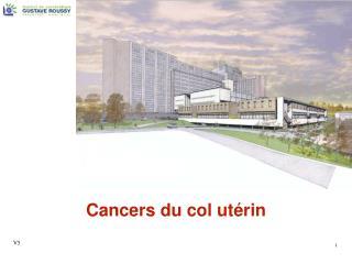Cancers du col utérin