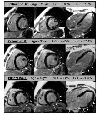 Patient no. 6:      Age = 26yrs     LVEF = 65%     LGE = 7.5%