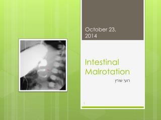 Intestinal Malrotation