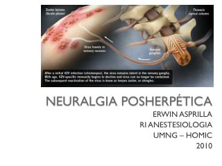 NEURALGIA POSHERP�TICA