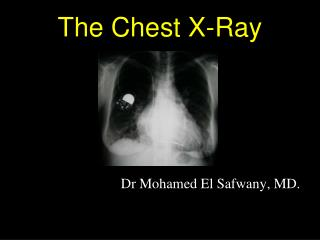 The Chest X-Ray
