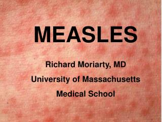 MEASLES Richard Moriarty, MD University of Massachusetts Medical School