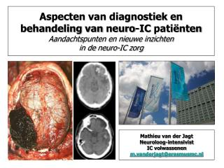 Mathieu van der Jagt Neuroloog-intensivist IC volwassenen m.vanderjagt@erasmusmc.nl