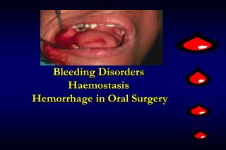 Bleeding Disorders Haemostasis  Hemorrhage in Oral Surgery