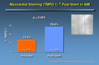 Myocardial Staining (TMPG 1)   Post-Stent  in AMI