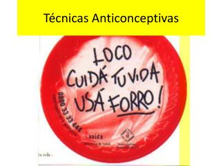 Técnicas Anticonceptivas